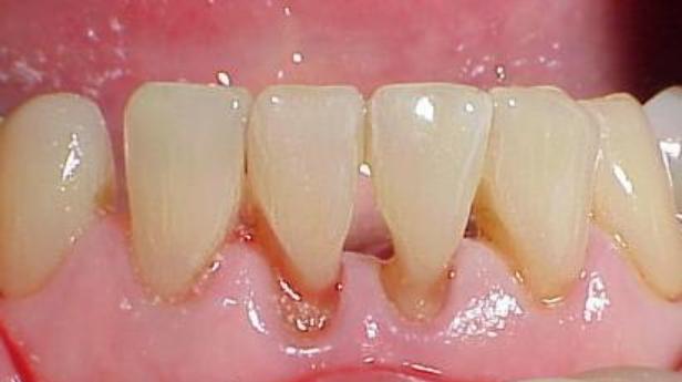 abfração dental