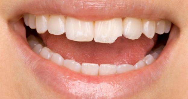 fraturas dentais